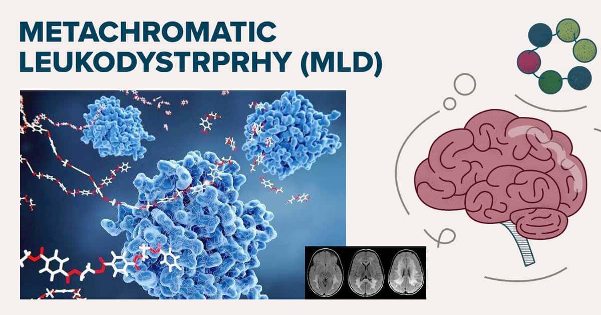 Metachromatic Leukodystrophy: a Rare Lipid Accumulation Neural Disorder